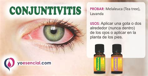 imagenes ojos con conjuntivitis conjuntivitis yoesencial
