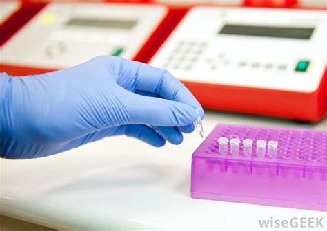 pcr test what factors affect the accuracy of a pcr hiv test