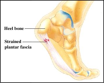 Planters Fasciitis Symptoms by Prevention And Treatment Of Heel