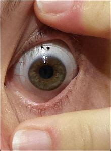 prosthetic contact lenses for light sensitivity contact lens