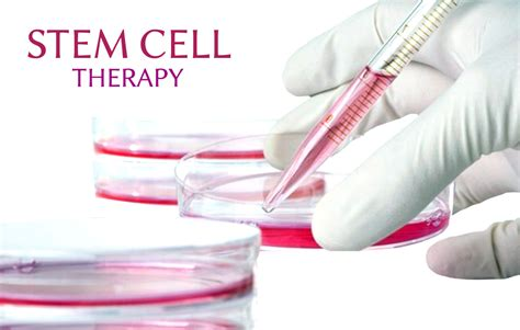 what is therapy stem cell therapy richter alternative center