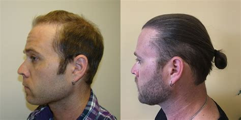hair plugs vs transplant fue hair transplant clinicspots