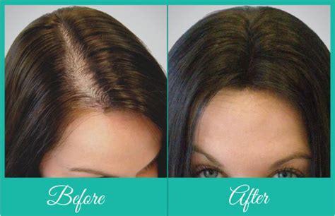 hair transplant for women female hair transplant treatment in delhi best hair