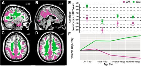 tigroid pattern white matter synergistic effects of age on patterns of white and gray