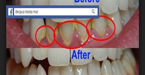 Untuk Membersihkan Karang Gigi inilah tips cara sangat mudah tanpa kos mahal untuk menghilangkan karang gigi yang ramai tak
