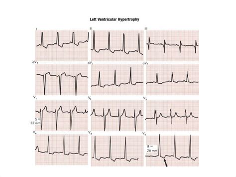 ecg tutorial online video world s tragic in medlife you may know or not ecg