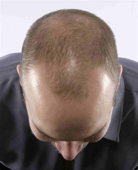 male pattern hair loss emedicine the young and the hairless wits vuvuzela