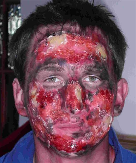 Pictures Of Burned Faces quot burnt quot by apeart redbubble