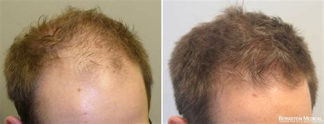 propecia finasteride hair loss medication bernstein patient ovq 34 y o male before treatmentafter 5 years on