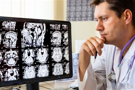what is interventional neurology with pictures