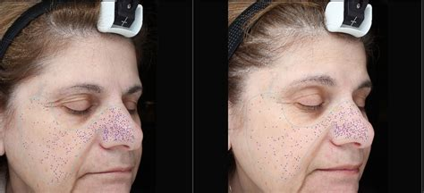 tca tattoo removal before and after pin tca peels before and after removal pictures on