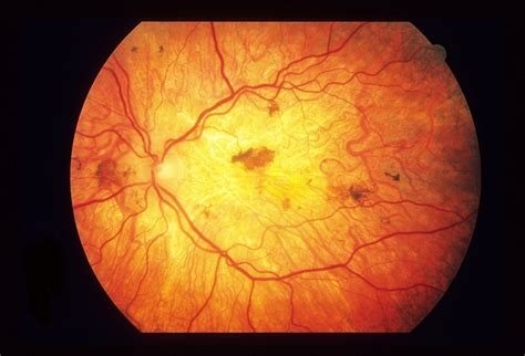 pattern dystrophy macular pattern dystrophy retina image bank