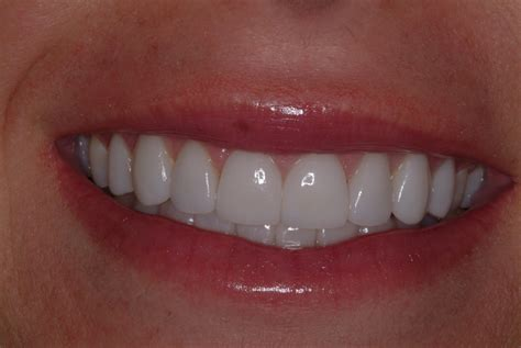 11 best porcelain veneers images veneers pictures posters news and on your