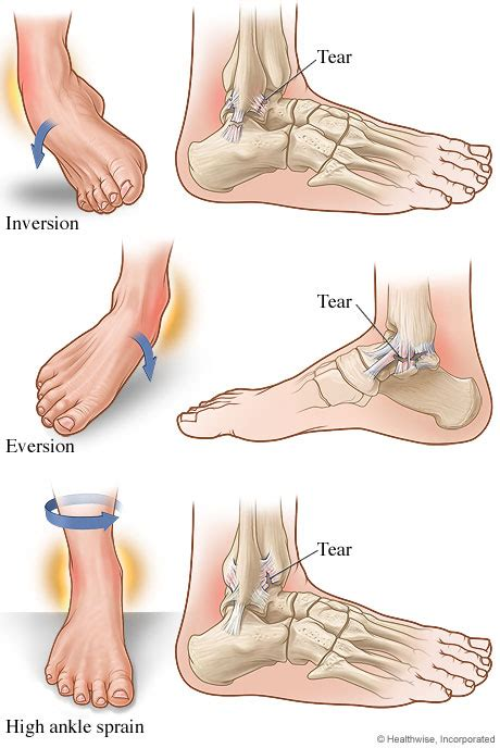 Interior Ankle Sprain by Types Of Ankle Sprains