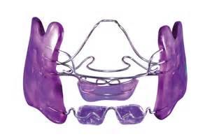 apparecchi dentali interni ortodonzia a cremona applicazione apparecchi dentali fissi