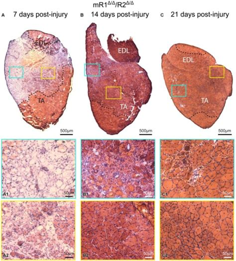 c section muscle damage muscle tissue of adult mr1δ δ r2δ δ mice retains re open i