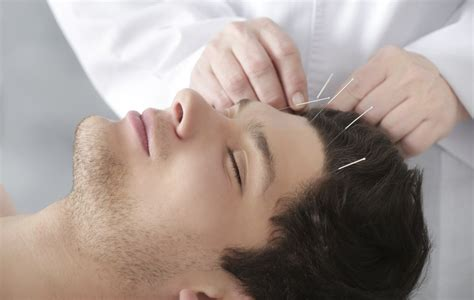 sleep drug acupuncture for better sleep