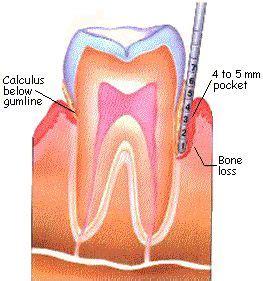 Pembersihan Karang Gigi Di Klinik Nadira klinik konsultasi kesehatan gigi mulut oleh drg