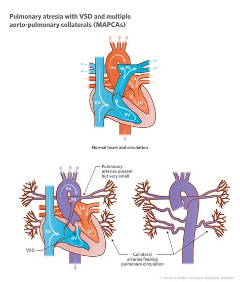 Suitable Meaning by Cardiology Pulmonary Atresia With Vsd And Mapcas