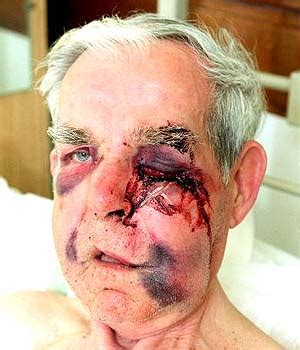 uk: hate crimes on the rise: pensioner viciously attacked