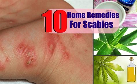 10 top home remedies for scabies health care a to z