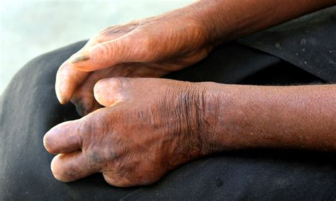 leprosy research shows  thousands  americans
