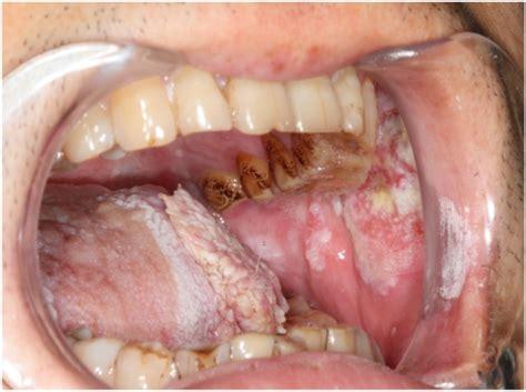 ohr innen geschwollen erkrankungen der mundh 246 hle und des rachens oropharynx