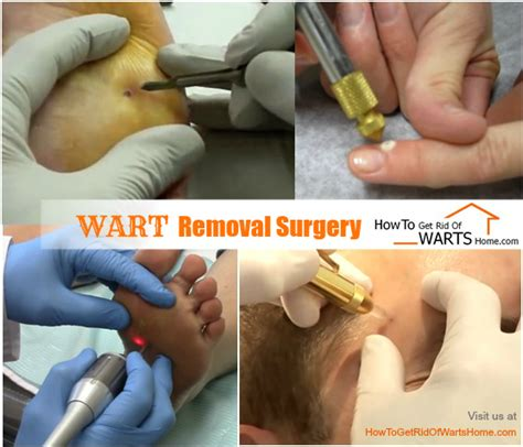 How To Remove Planters Wart by How To Get Rid Of Hpv Warts Fast In One Day Overnight