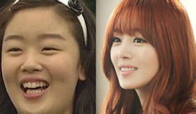 artis k pop yang pernah membuat pembedahan plastik di dagu 10 artis wanita korea yang wajahnya berubah drastis