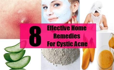 Effective Home Remedies For Acne by Effective Home Remedies For Cystic Acne