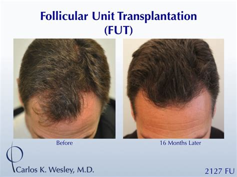 hair loss hair transplant and hair restoration advice hair loss hair transplant and hair restoration advice