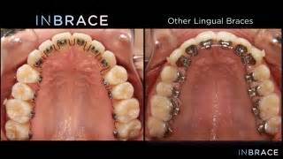 invisalign vs traditional braces inbrace lingual braces explained