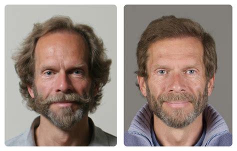 americas best hair transplant h 229 rtap kvalitets h 229 rtransplantasjon og prp i oslo norge