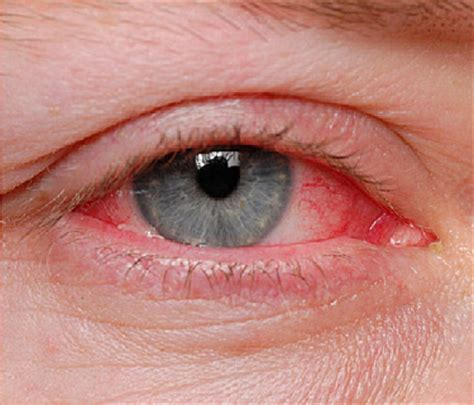 Can U Get Pink Eye From On A Pillow by Pinkeye Causes And Treatments