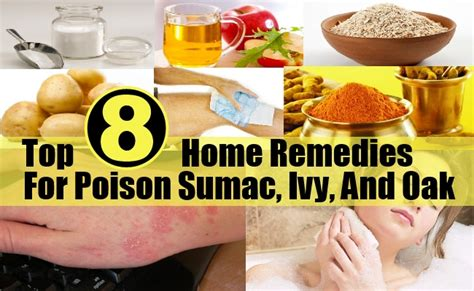 top 8 home remedies for poison sumac and oak diy