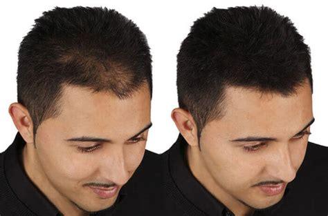 vorher frã vorher nachher bilder million hair