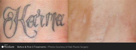 tattoo removal nj picosure removal monmouth county removal