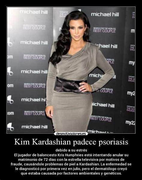 imagenes de memes de kim kardashian kim kardashian padece psoriasis desmotivaciones