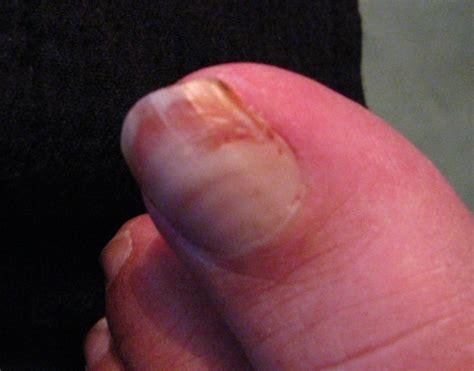 split nail split toenail