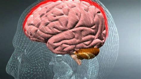 febbre e mal di testa forte un caso di meningite una donna di 50 anni di quartu si 232