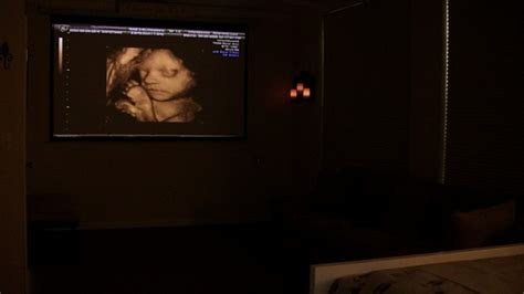 Office Depot Hours Fairfax Infantsee4d Ultrasound In Fairfax Virginia 3d 4d Hd
