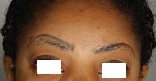 tattoo removal zurich guidelines for permanent makeup removal eyebrow laser