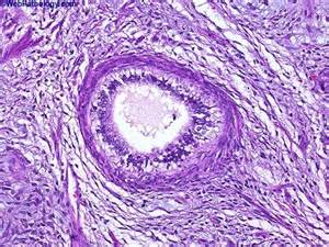 Immature Teratoma Pathology Outlines by Teratoma Histology Www Pixshark Images Galleries With A Bite