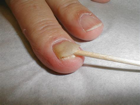 toenail separated from nail bed a practical guide to clinical medicine