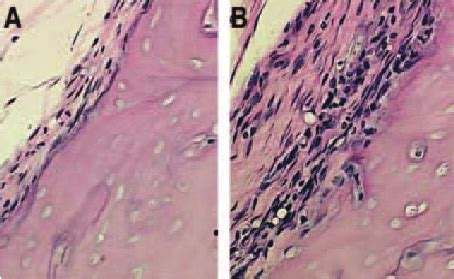 why are histological sections stained representative histological sections of bone implanted