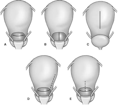 low segment transverse cesarean section cesarean delivery basicmedical key