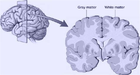 grey matter grey matter vs white matter freudforthought
