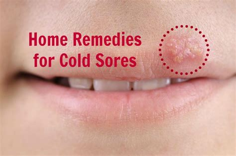 home remedies for cold sores stay at home