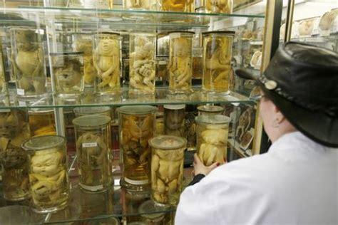 le musée des curiosités médicales de paris est menacé