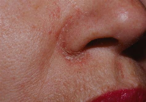 nose treatment nose